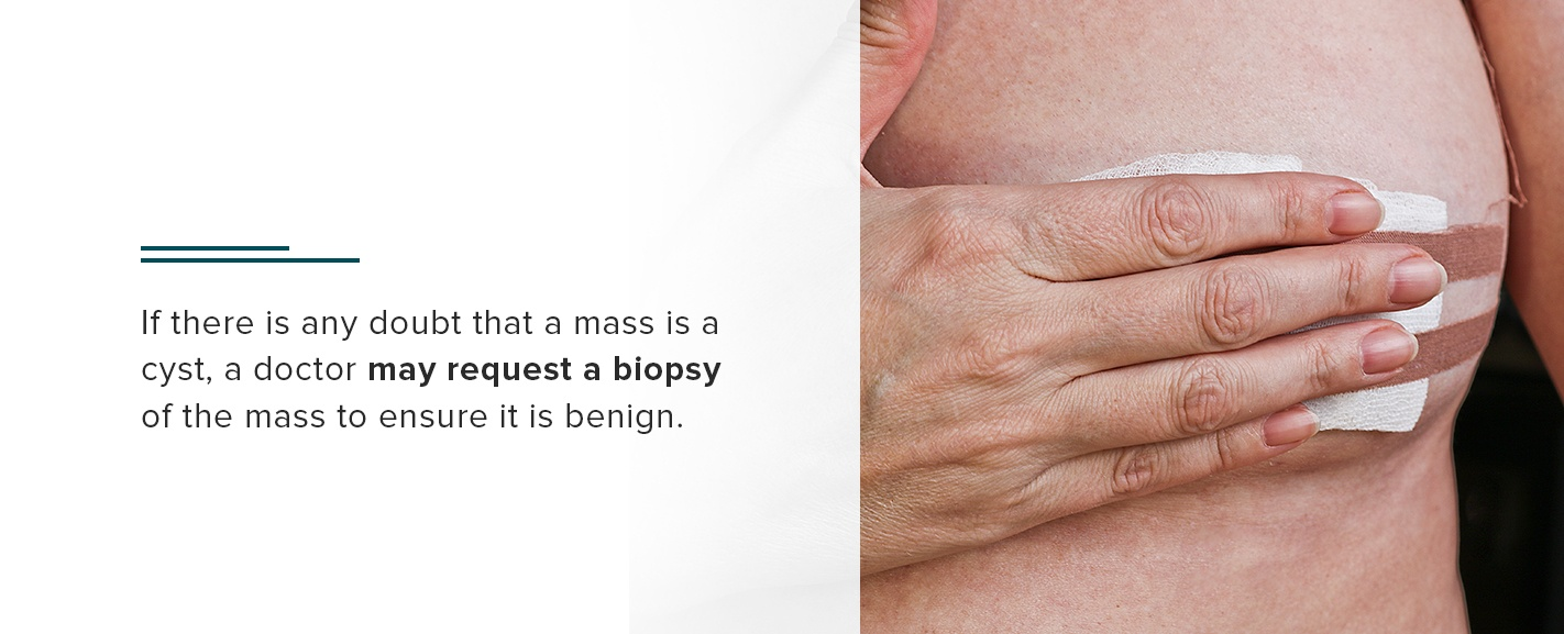 if there is any doubt that a mass is a cyst, a doctor may request a biopsy