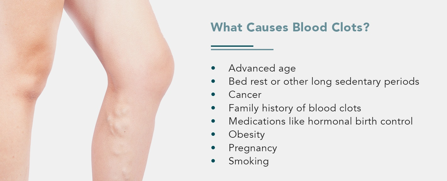 What Causes Blood Clots?