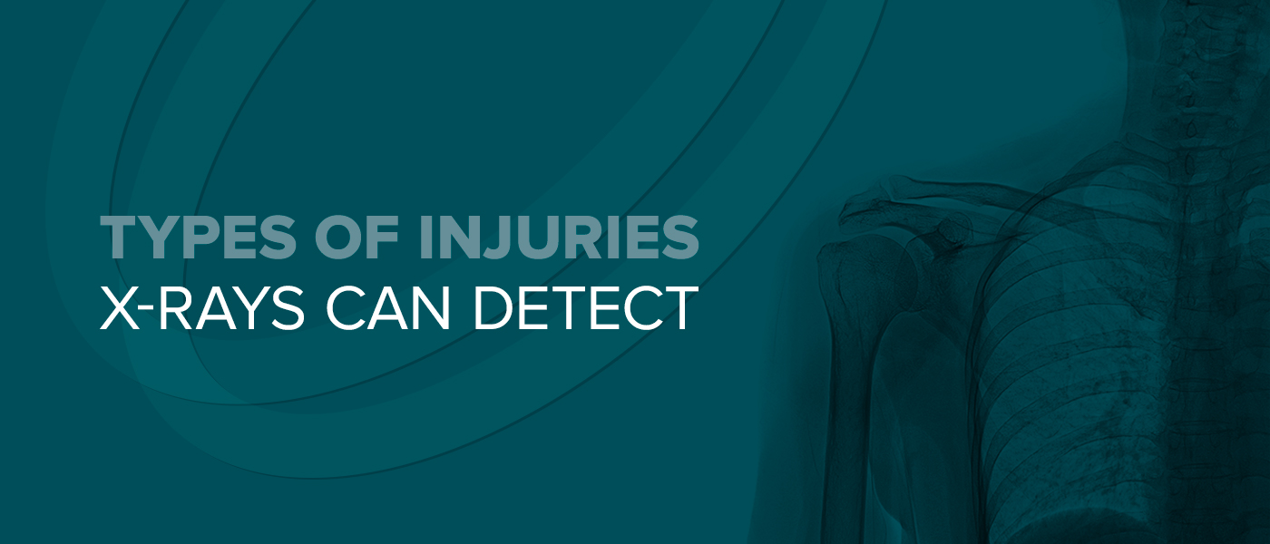 Types of Injuries X-Rays Can Detect