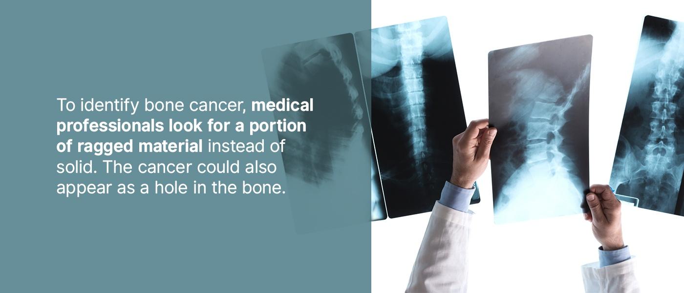 identifying bone cancer on x-ray
