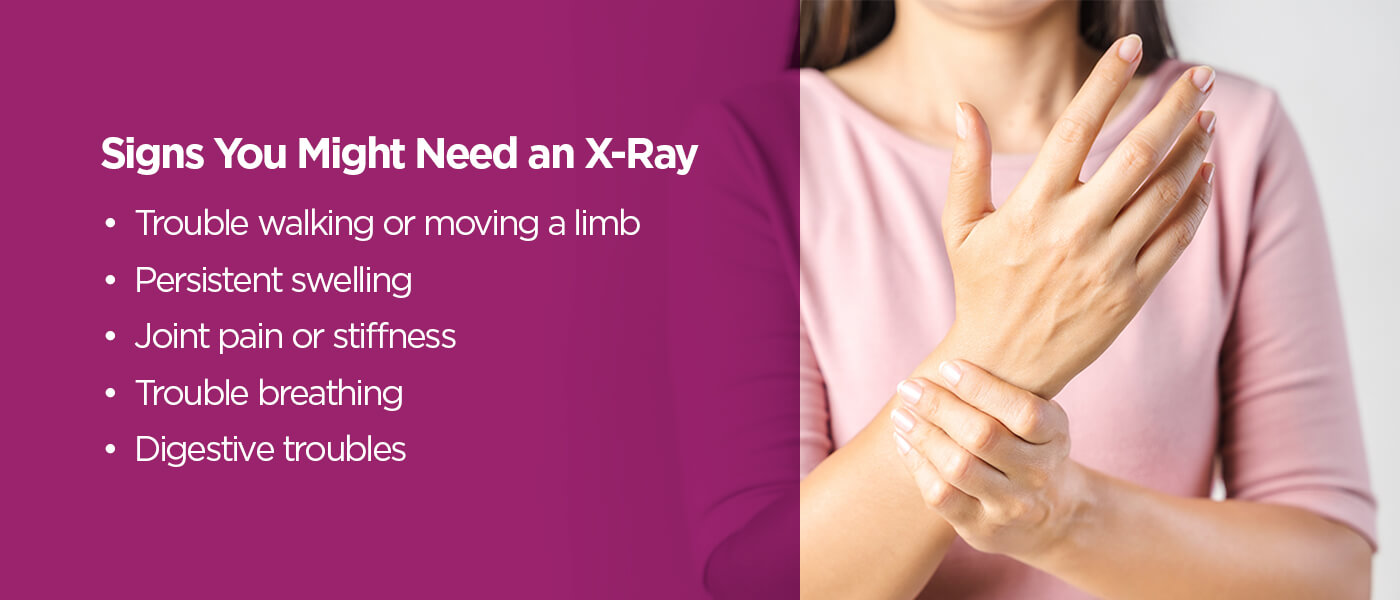 Signs you might need an x-ray [list]
